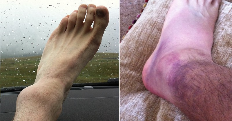 Ankle post Whernside